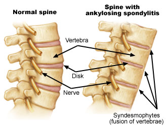 Men Young With Ankylosing Dealing Spondylitis